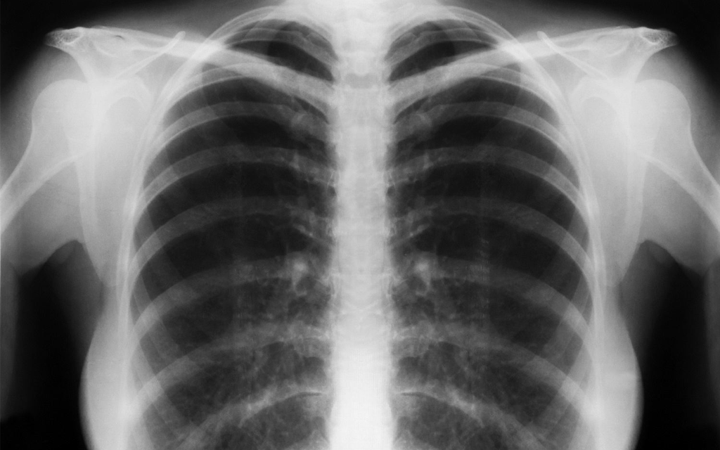 Tuberculose Blog Unimed VTRP 1